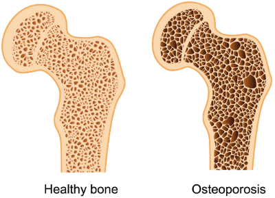 Ostoeporosis 1